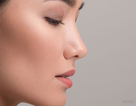 Nose Surgery - Marin County, CA - Tancredi D'Amore, MD